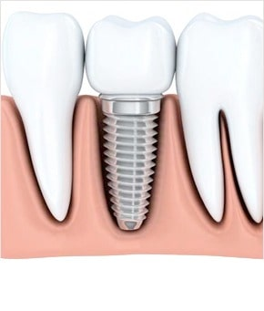 Illustration of a tooth implant