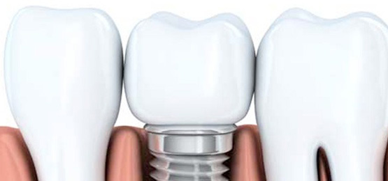 Illustration of the inside of a mouth and a dental implant