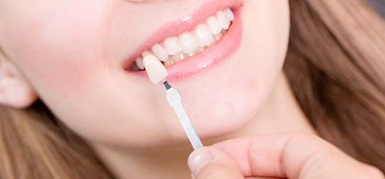 Dental restoration for a women