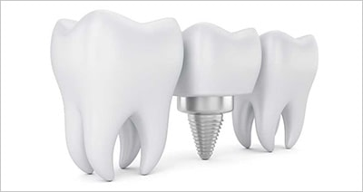 Dental Implants: A Quick Guide to What You Should Know